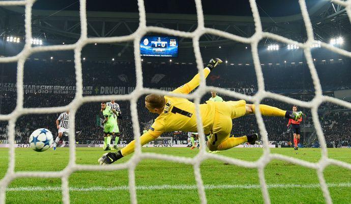 Manchester City: nuovo prestito per Hart
