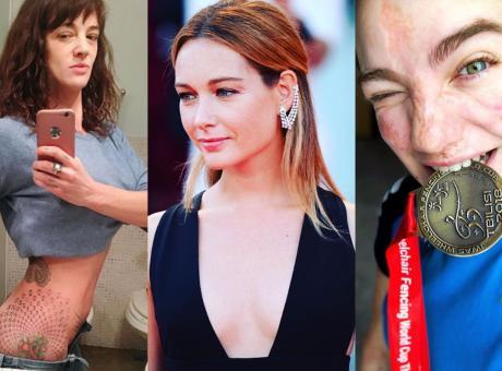 Bebe Vio, Capotondi e Asia Argento: tre differenti modi di essere donna